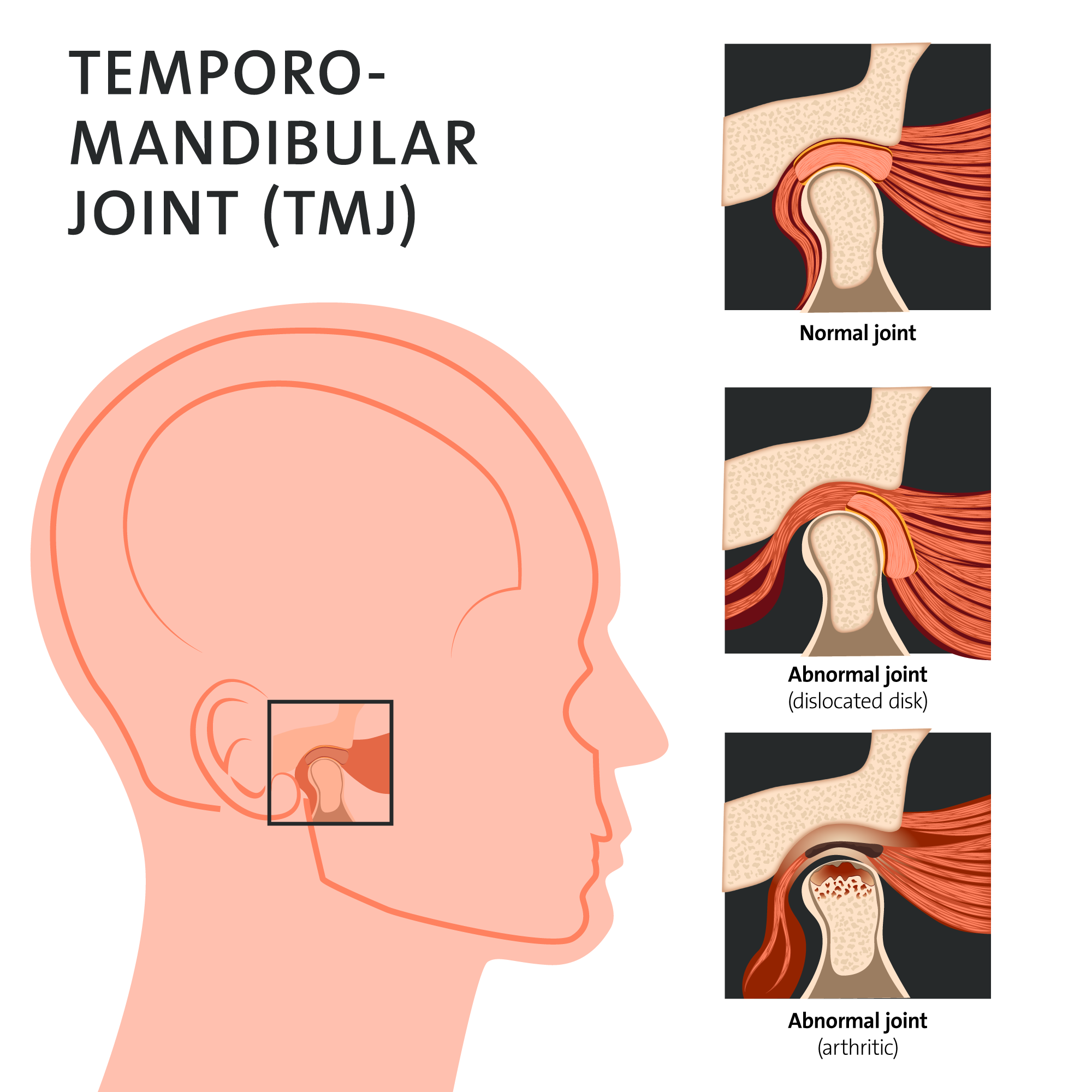 Tmj Temporomandibular Joint Tmd Temporomandibular Disorder