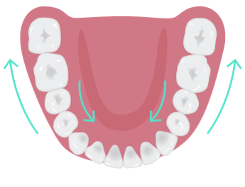 Distalization_or_mesialization_of_posterior_teeth.png