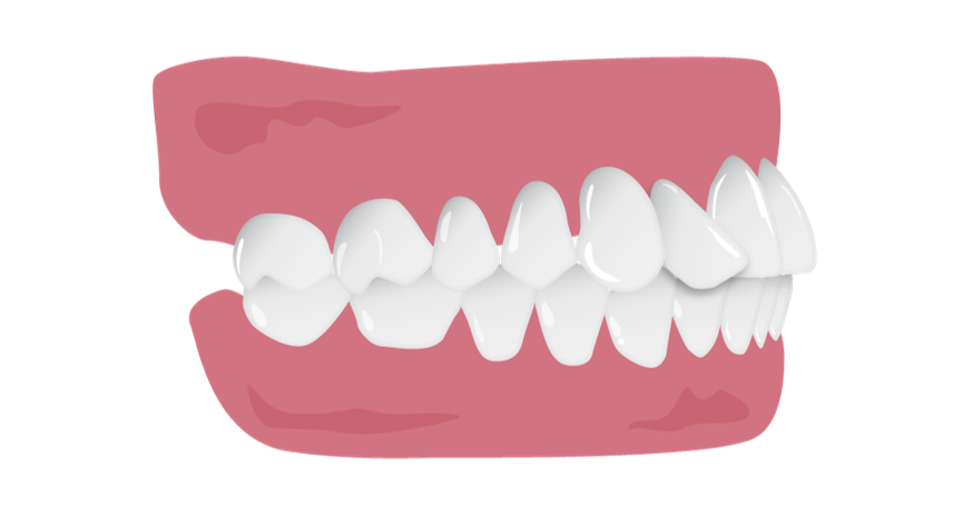 Tipped_tooth_short_borders.png