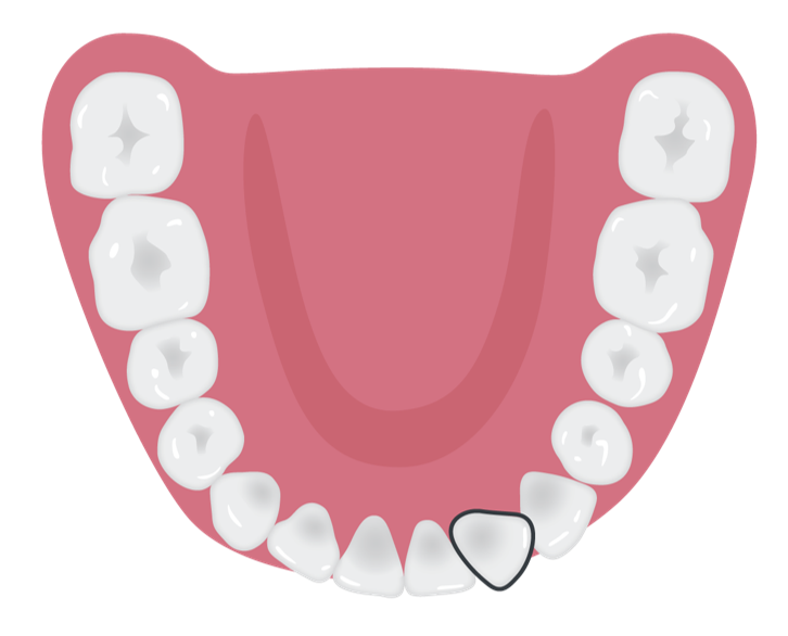 rotated_tooth_3.png