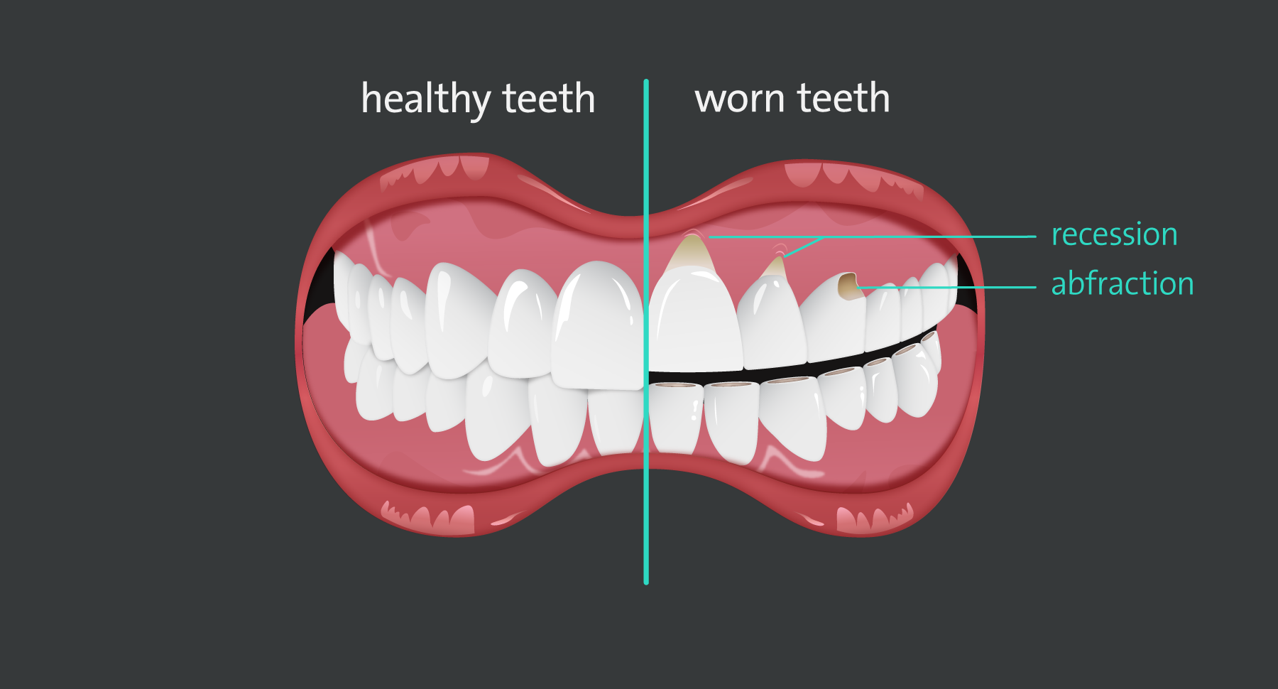 Worn-teeth-v1.png