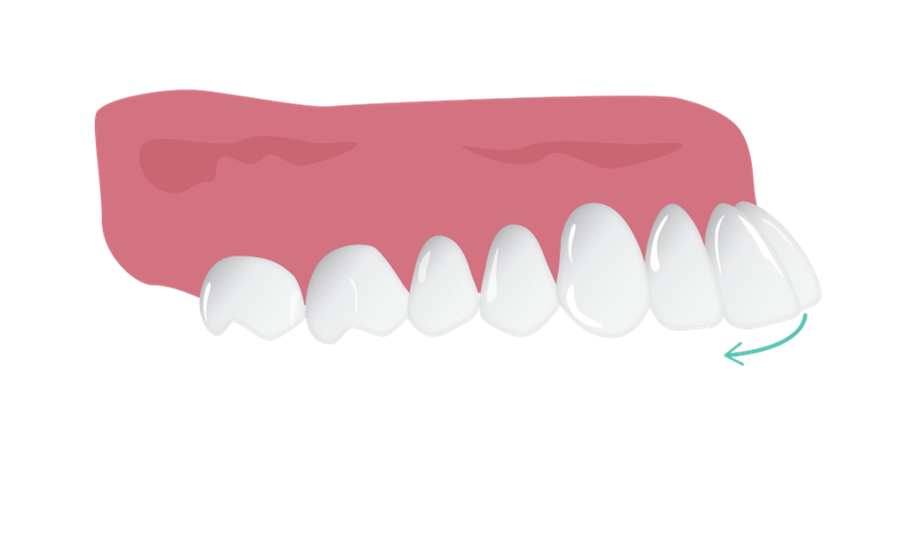 reclining_proclined_teeth.png