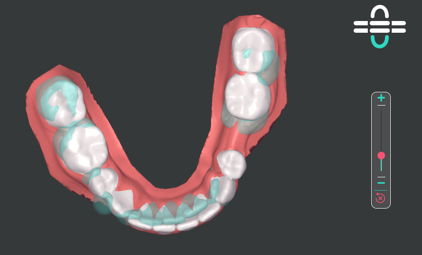 ClearPilot_-_superimpose_-_lower_occlusal.png