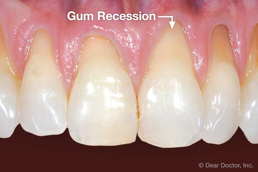 Gum Recession Clearcorrect Support