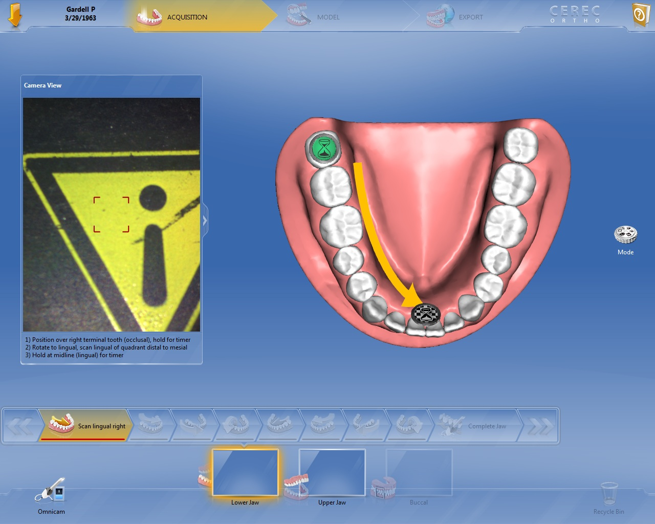 How to Submit Cases with CEREC Ortho Tutorial – ClearCorrect