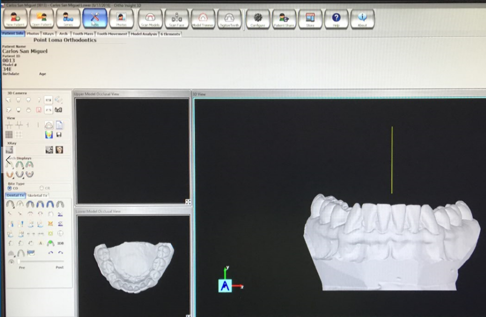 how to submit cases with a motion view ortho insight 3d scanner rh support clearcorrect com